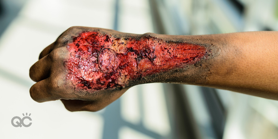 special effects makeup skin burns