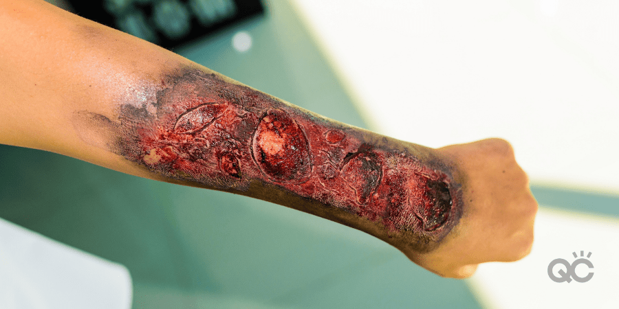 How to Create a Special Effects Makeup Look Blog - Burn Makeup on Arms