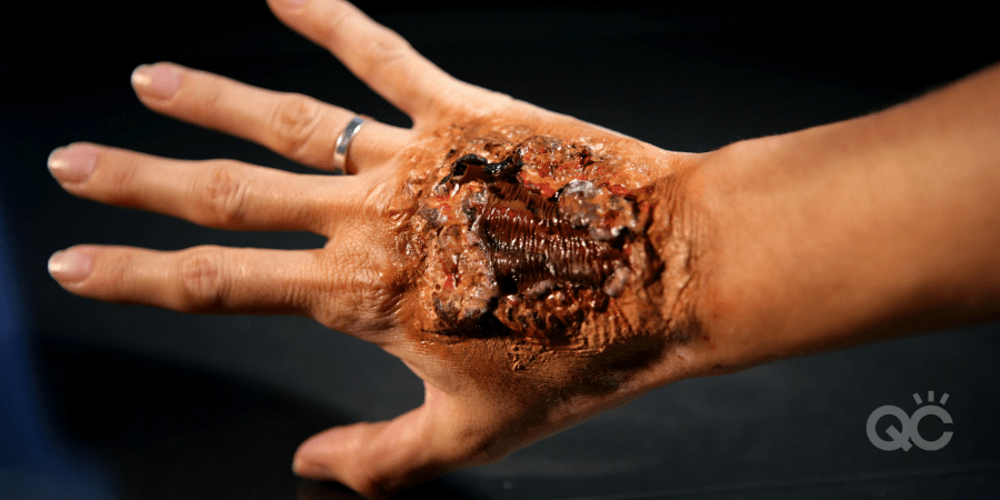 special effects makeup burnt hand prosthetic
