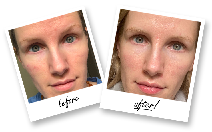 QC Skincare Course Testimonial - Before and After Photos