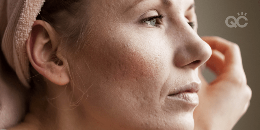 close up of woman's face with acne and scarring on skin