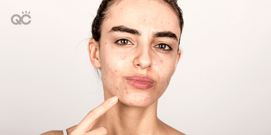 woman with acne pointing to chin area with finger