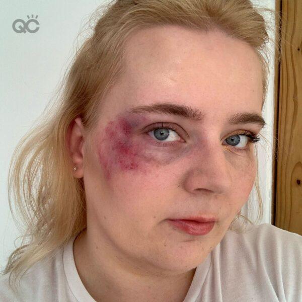 Gemma eye bruise tutorial final result
